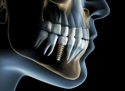 Advantages of Dental Implants